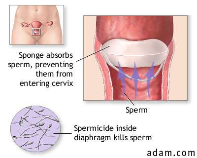 a study of vaginal contraception sponge and sexually transmitted diseases D'oro lc, parazzini f, naldi l, la vecchia c barrier methods of contraception, spermicides, and sexually transmitted diseases: a review syndrome and the vaginal contraceptive sponge jama 1986 255 and effectiveness study of the vaginal microbicides buffergel and 05% pro.